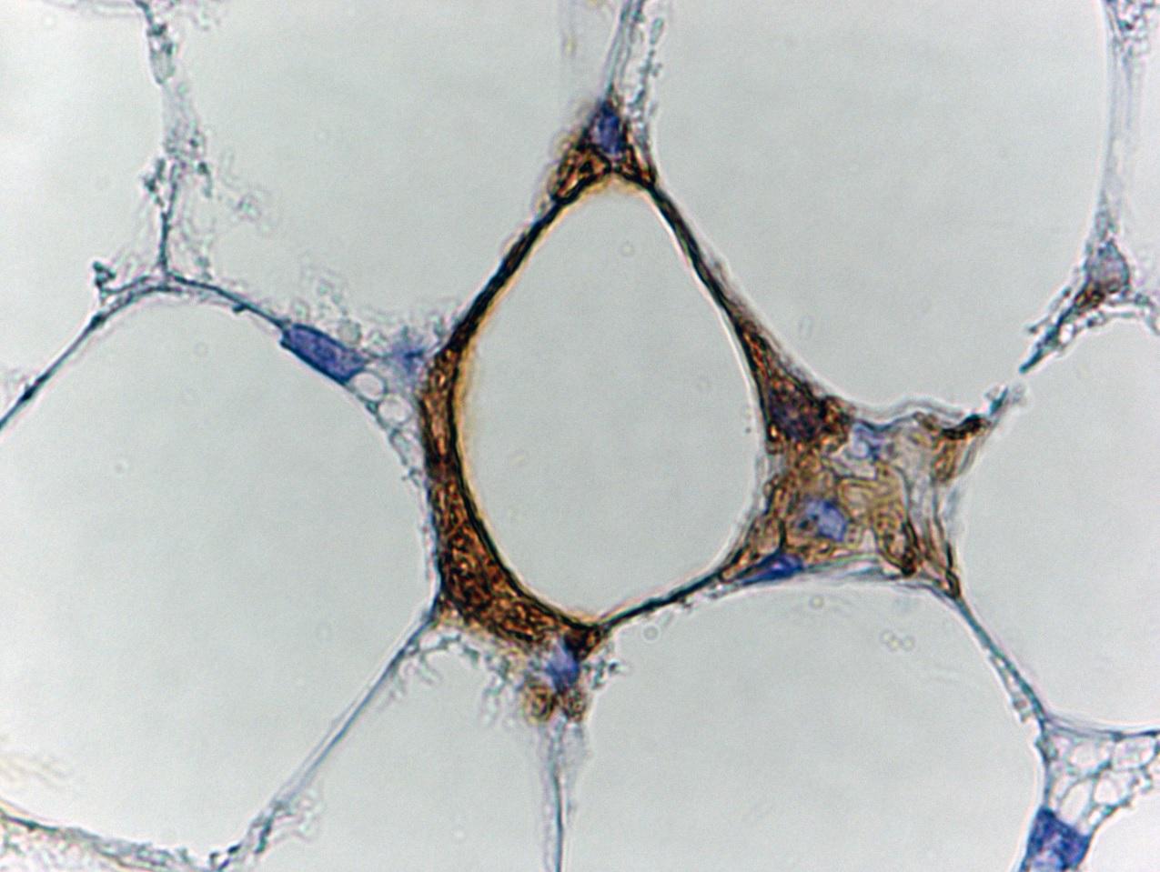 Adipocita bruno trasformato in bianco e morente circondato dai becchini fisiologici (marrone)