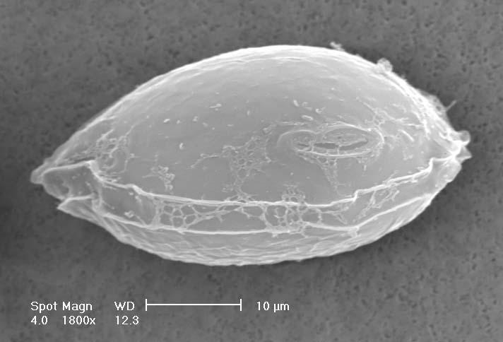 Ostreopsis ovata (Dinophyceae) microalga bentonica tossica
